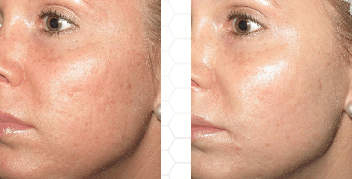 Microneedling Hagerstown