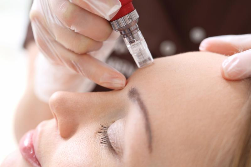 Anti-Aging Treatments: How Microneedling is Changing the Game