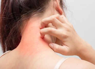 Eczema Treatment in Hagerstown