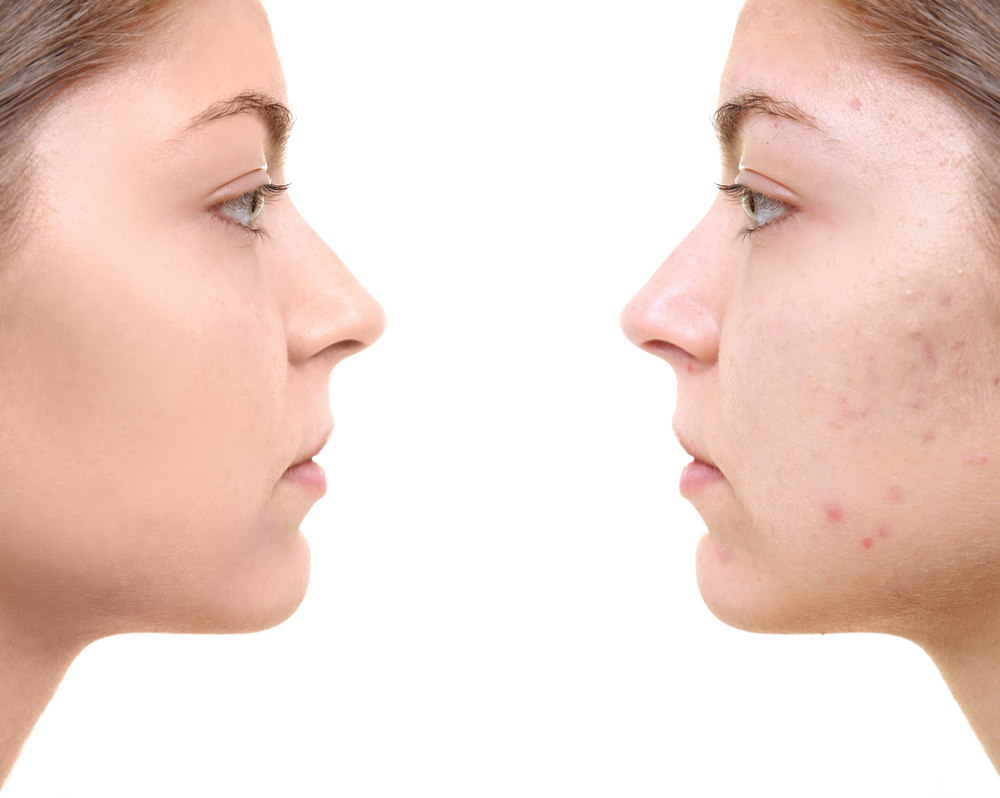 Acne Hagerstown
