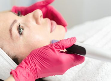 Microneedling and Platelet Rich Plasma