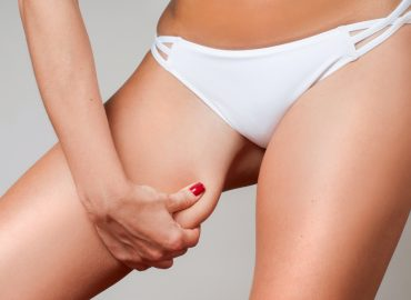 Liposuction for Thighs: Is It Risky?