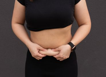 How Much Is CoolSculpting and Is It Worth It?