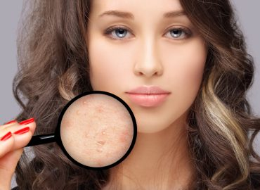 5 Tips to Choose the Best Acne Doctor in Frederick, MD